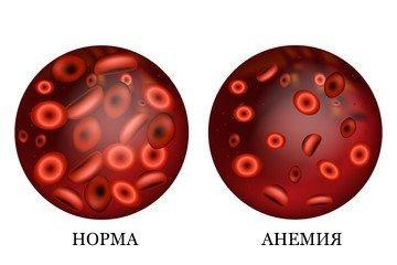 Анализы для диагностики анемии. Какие анализы стоит сдавать?